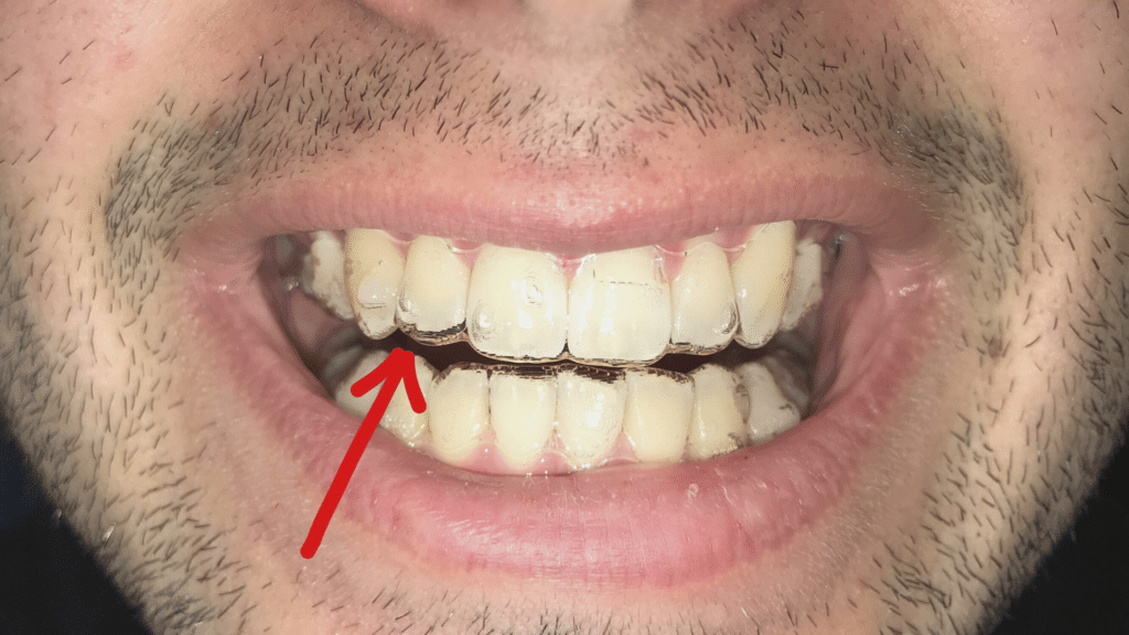 how do i know if my invisalign is working